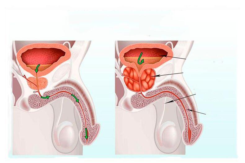 Prostatitis baralgetas